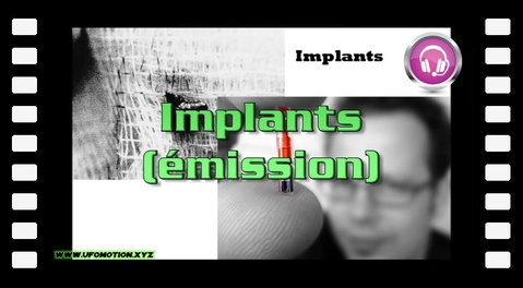 Implants (émission)
